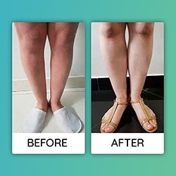 thigh lift Before After iran
