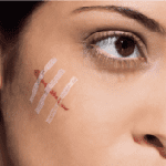 Scar revision surgery reducing visibility of scars
