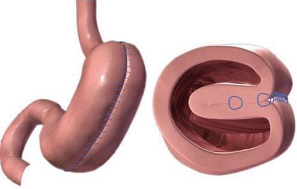 gastric plication