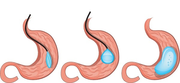 intragastric balloon in stomach