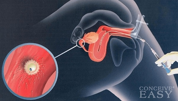 intrauterine insemination procedure illustrated