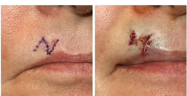 Z-plasty scar revision surgery before and after