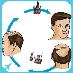 FUE hair transplant technique used in hair transplantation surgery in Iran