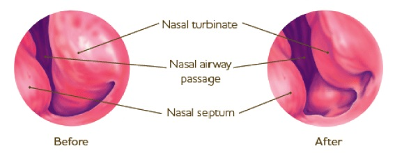 turbinate reduction