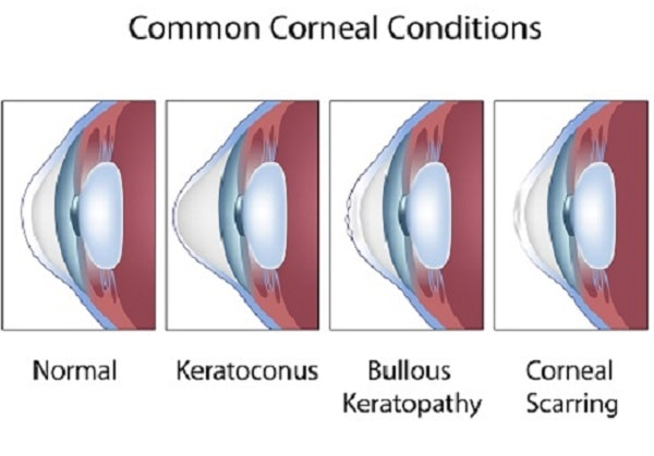 different eye condition with corneal diseases vs normal eyes
