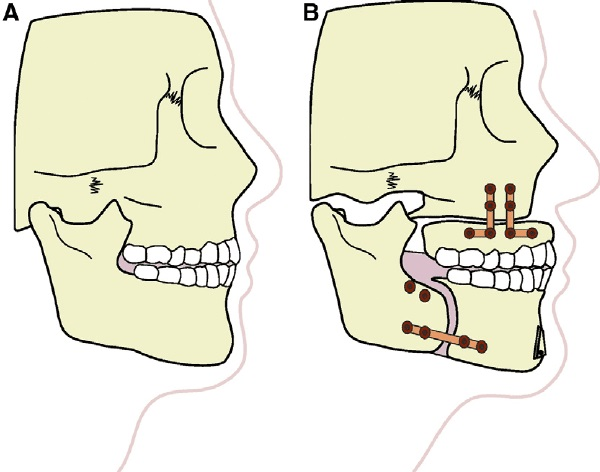 maxillomandibular advancement