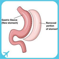 gastric sleeve i sverige