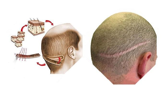 FUT hair transplant in iran