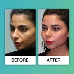 nose job before after Iran