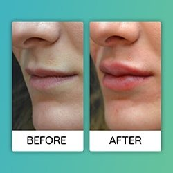 lip augmentationBefore After iran