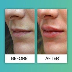 lip augmentationBefore After iran
