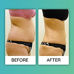 liposuction Before After iran