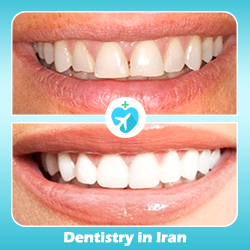 Hollywood smile before and after iran