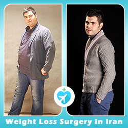 weight loss surgery before and after Iran