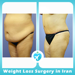 Bariatric surgery effect on the abdomen