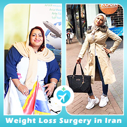 Gastric sleeve surgery before after by AriaMedTour