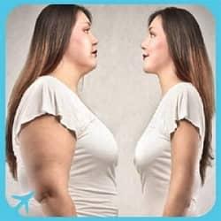 Weight loss surgery Iran