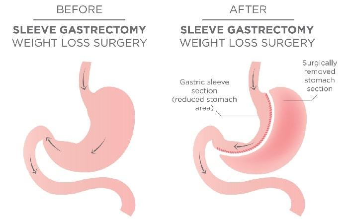 sleeve gastrectomy in Iran