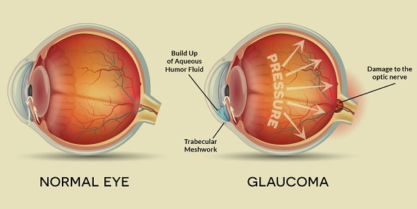 illustration of normal eye vs. eye with glaucoma