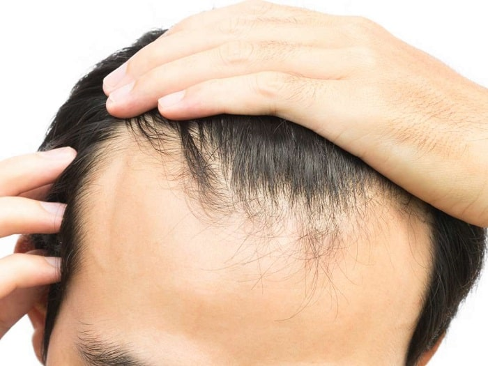 man stroking his hair to see signs of hair loss at hairline area