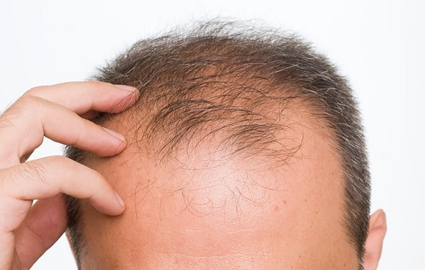 why Iran for hair transplant