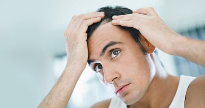 man suffering from receding hairline