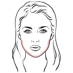 jawline areas affected in jawline enhancement procedure