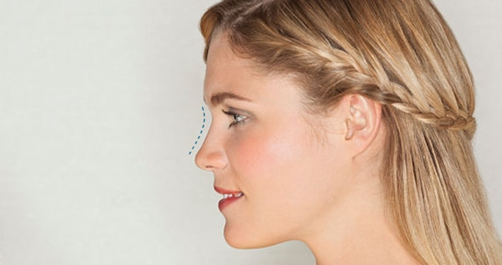 nose reshaping surgery for women
