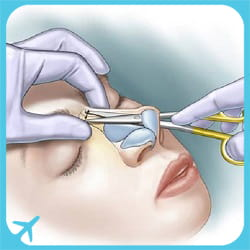 closed rhinoplasty technique