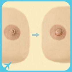 nipple correction surgery in Iran