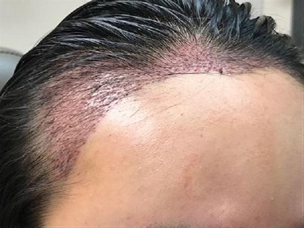 hairline advancement