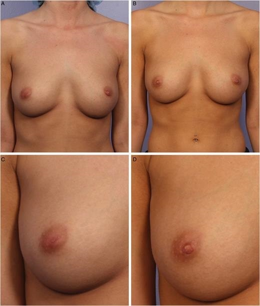 nipple correction surgery before and after