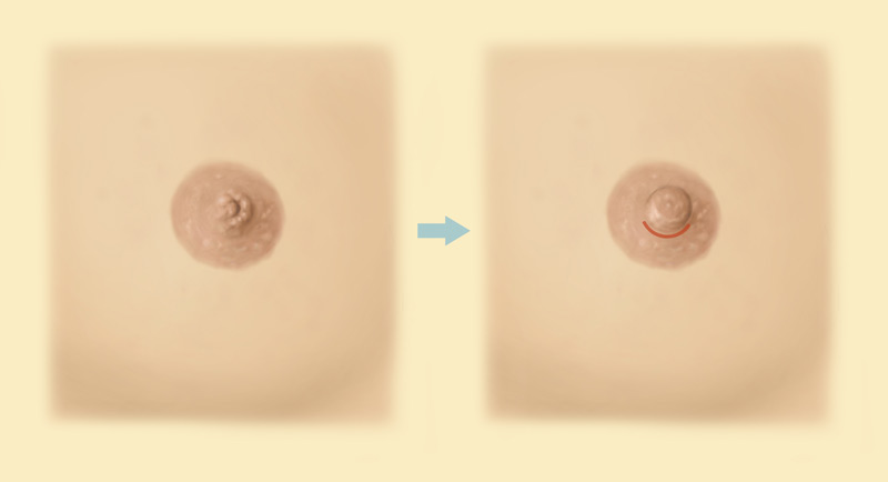 before and after inverted nipple surgery