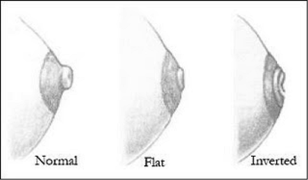 normal, flat and inverted nipple