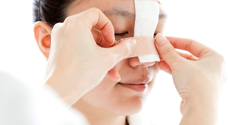 doctor applying bandage on patient's nose after rhinoplasty
