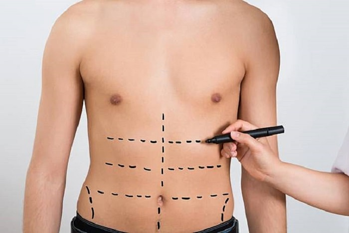 A surgeon marks the areas on the stomach that is to be involved in an ab etching surgery