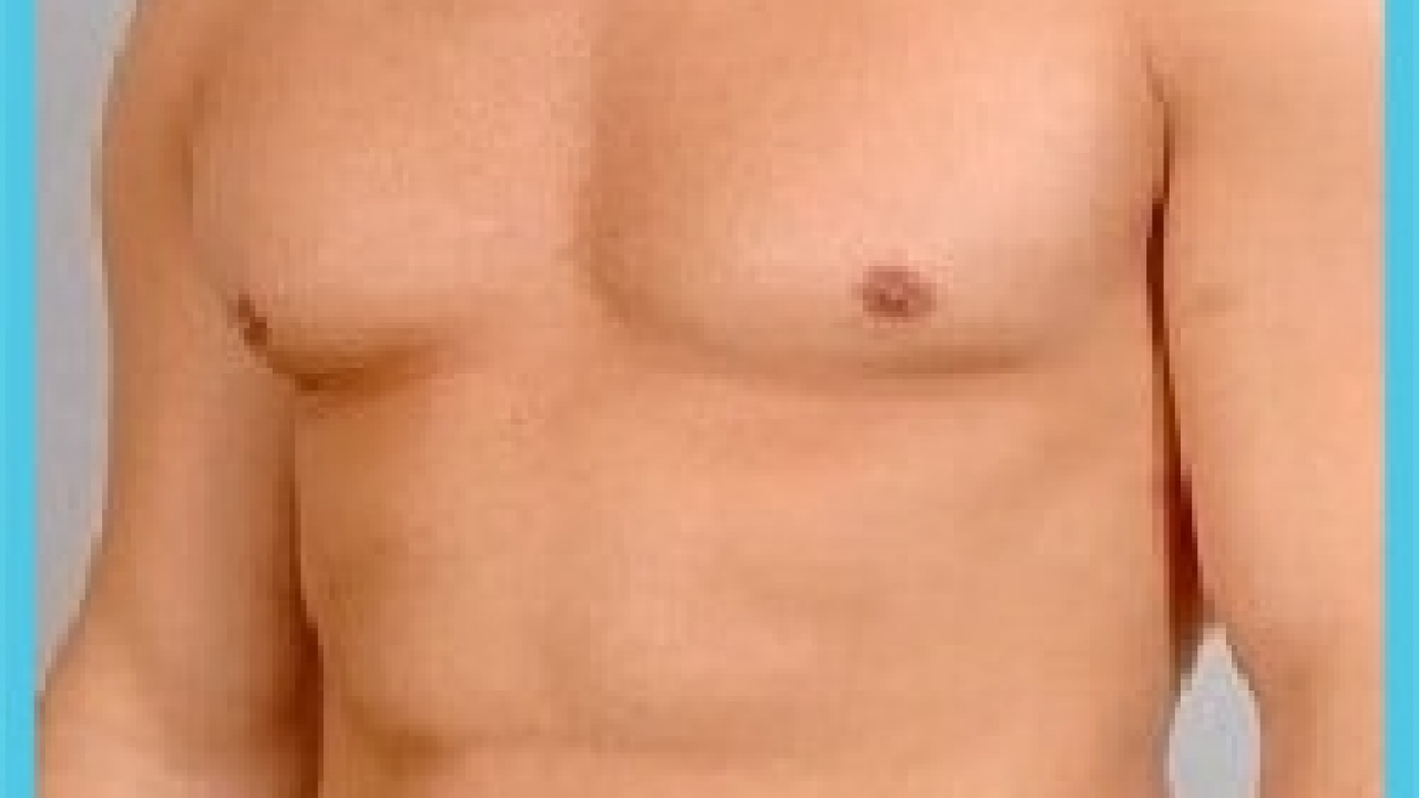 Abdominal Etching in Iran | Six Pack Surgery in Iran