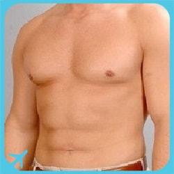 abdominal etching surgery in Iran