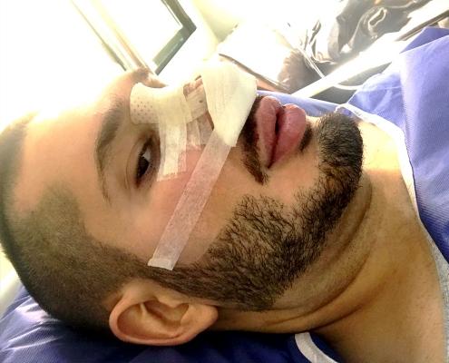 foreign rhinoplasty patient in Iran