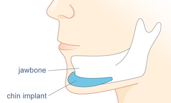 chin implant insertion into the chin bone