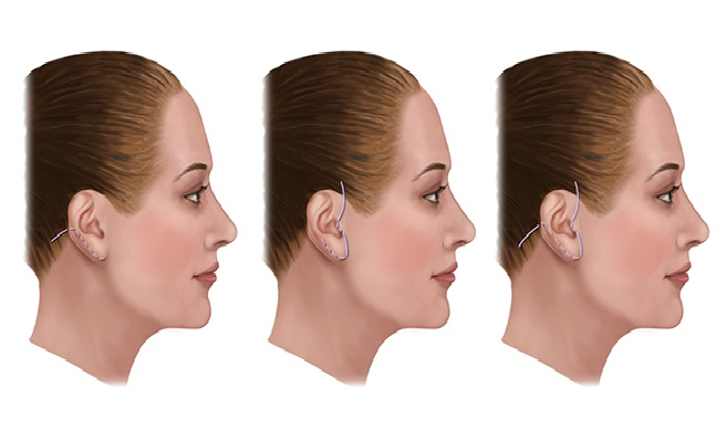 face lift incisions along the hairline
