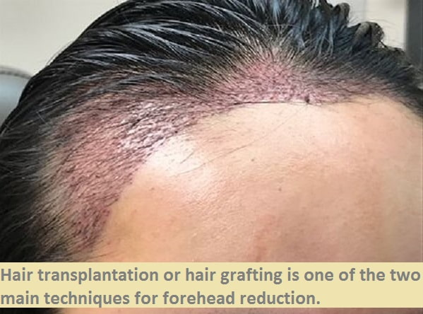 hairline lowering by hair transplant for woman