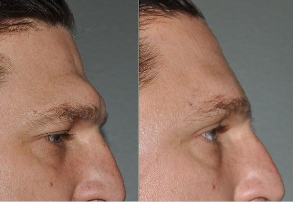brow bone reduction in iran before and after