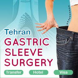 gastric sleeve package in Iran