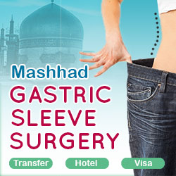 gastric sleeve surgery in Mashhad