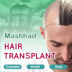 hair transplant package in Mashhad