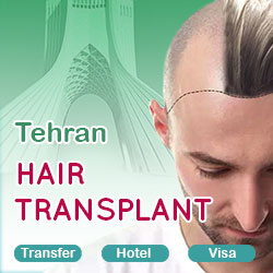 hair transplant package in Tehran