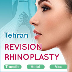 revision rhinoplasty package in Tehran