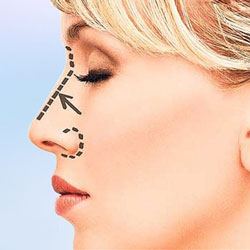 rhinoplasty articles