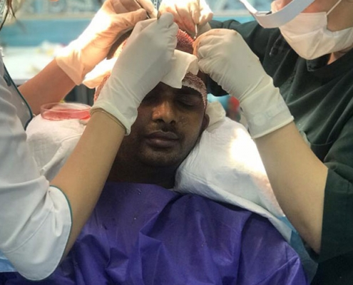 indian patient hair transplant surgery in iran